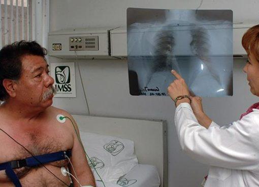 Fumar genera enfisema pulmonar: IMSS